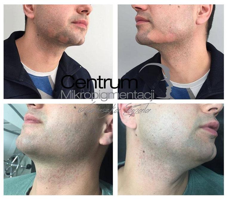 Pigmentacja brody efekt zabiegu