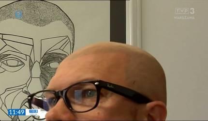 mikropigmentacja skóry głowy opinie