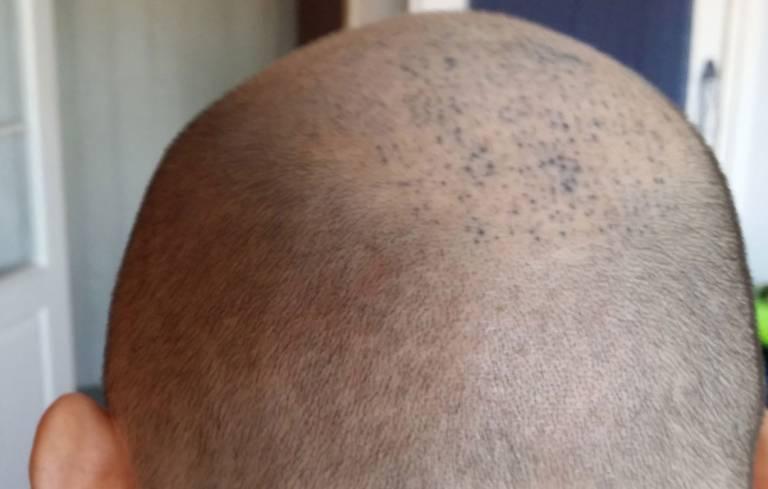 Nieudane Mikropigmentacje Skóry Głowy Tatuaże