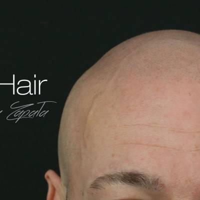 Klinika Mikro Hair