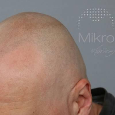 Mikropigmentacja skóry głowy