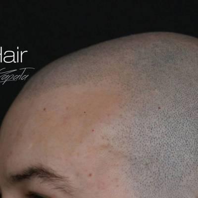 Mikropigmentacja skóry głowy. Efekt