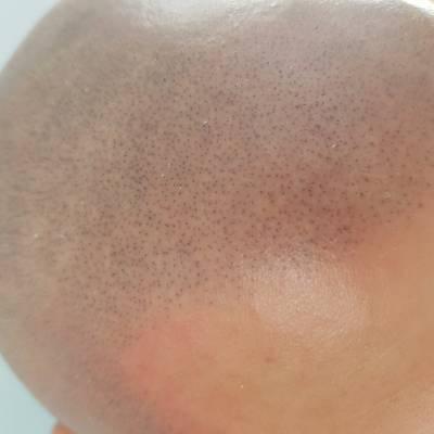 Efekt zabiegu Mikro Hair