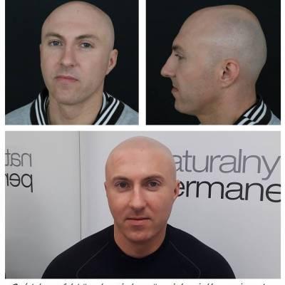 Zdjęcie mikropigmentacji skóry głowy. Efekt ogolonej głowy.