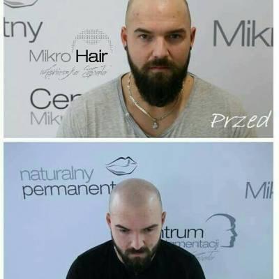 subtelna mikropigmentacja skóry głowy, przed i po