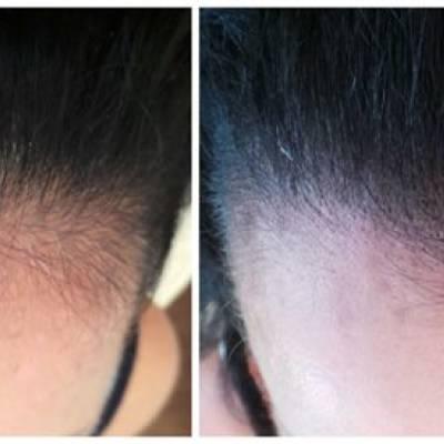 Zagęszczanie włosów efekt