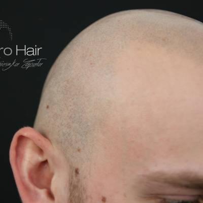 Mikropigmentacja skóry głowy. Efekt zabiegu