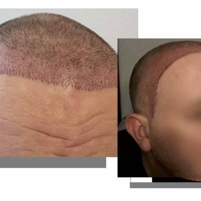 tatuaż na głowie, mikropigmentacja