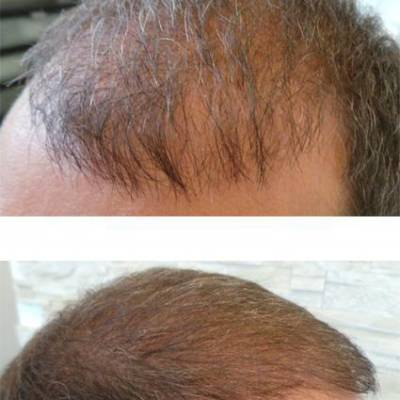 Zagęszczanie włosów efekt.