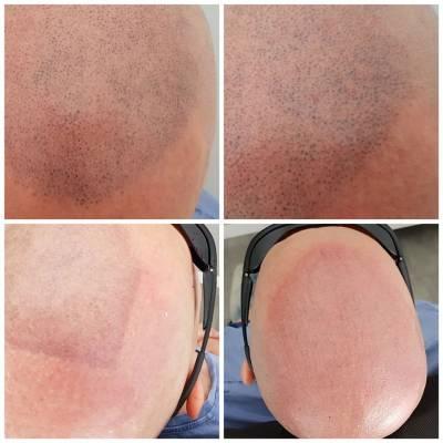 Laserowe usuwania tatuażu na głowie. Efekt przed i po
