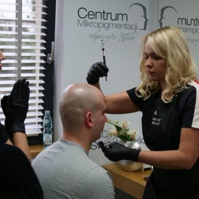 linia frontalna mikropigmentacja skóry głowy