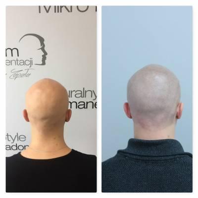 Mikropigmentacja skóry głowy, łysienie plackowate, efekt zabiegu, przed i po