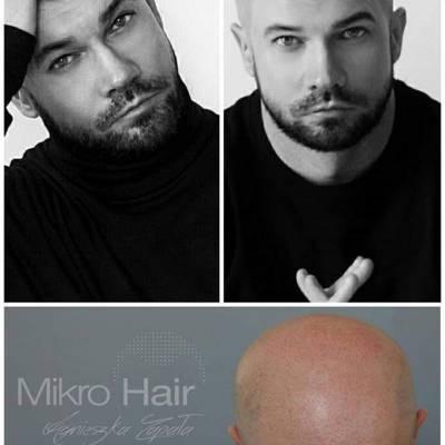 Mikropigmentacja skóry głowy efekt