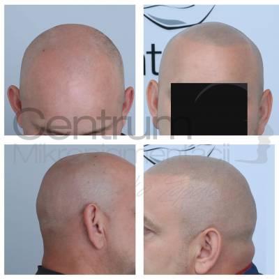 Mikropigmentacja skóry głowy przed i po