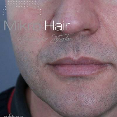 Mikropigmentacja zarostu