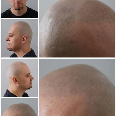 naturalna mikropigmentacja skóry głowy