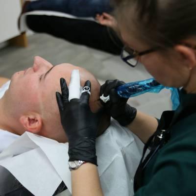 pigmentacja skóry głowy