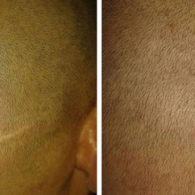 kamuflaż blizn mikropigmentacja skóry głowy