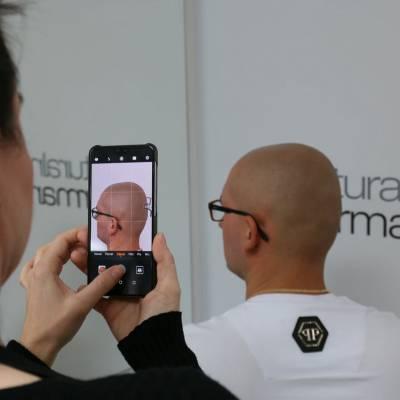 szkolenie efekt zabiegu mikropigmentacji skóry głowy