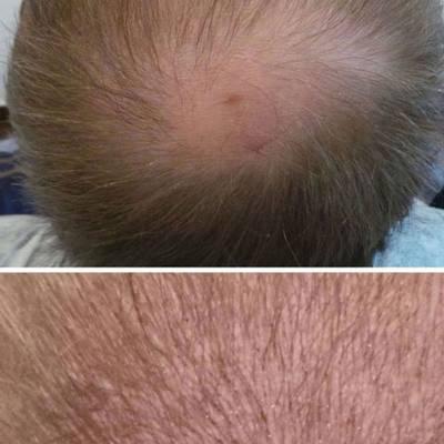 mikropigmentacja skóry głowy zagęszczanie włosów