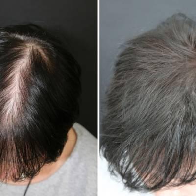 Zagęszczanie włosów mikropigmentacja skóry głowy.