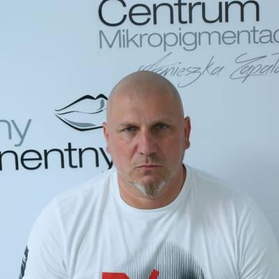 Mikropigmentacja skóry głowy Warszawa