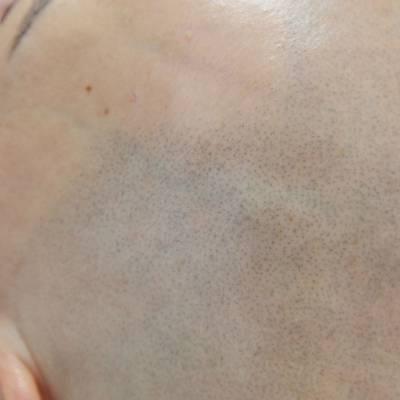 Efekt mikropifgmentacji łysienie plackowate