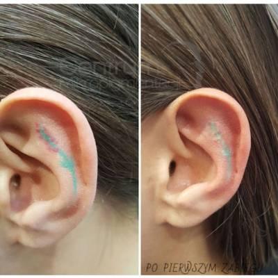 Efekty laserowe usuwanie tatuażu