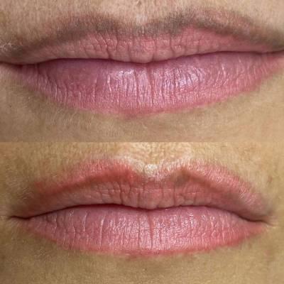 Laserowe usuwania makijażu permanentnego ust