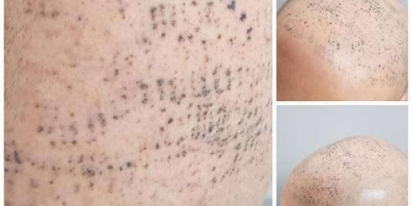 nieudana mikropigmentacja skóry głowy