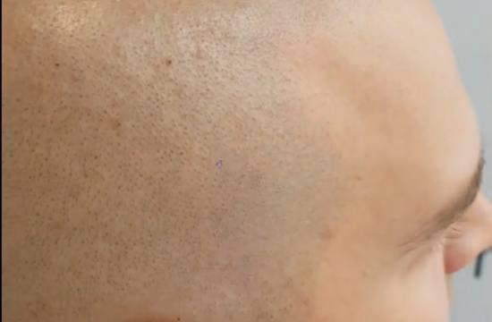 Mikropigmentacja skóry głowy. Efekt zabiegu po 3 latach